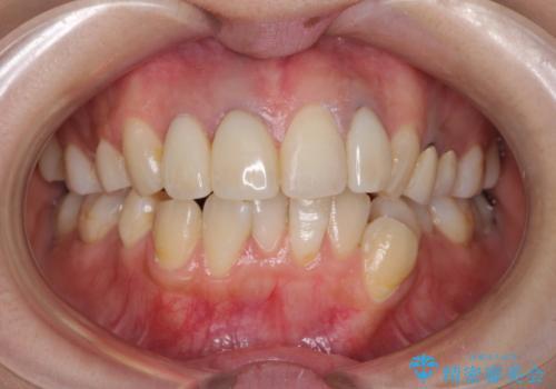 前歯の被せ物装着前のホワイトニングの症例 治療前