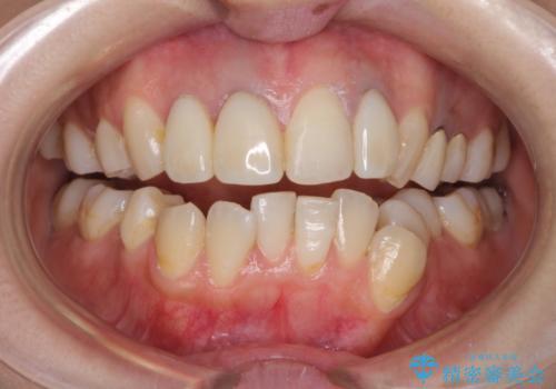 前歯の被せ物装着前のホワイトニングの治療前