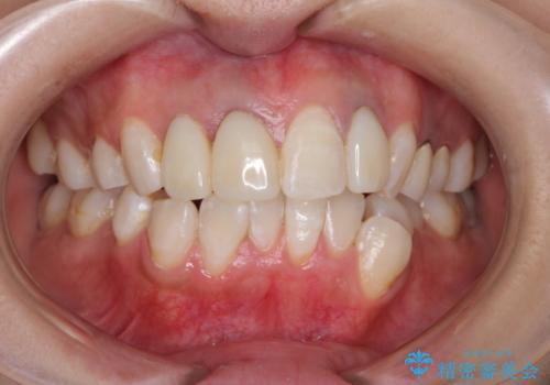 前歯の被せ物装着前のホワイトニングの症例 治療後