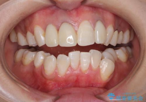 前歯の被せ物装着前のホワイトニングの治療後