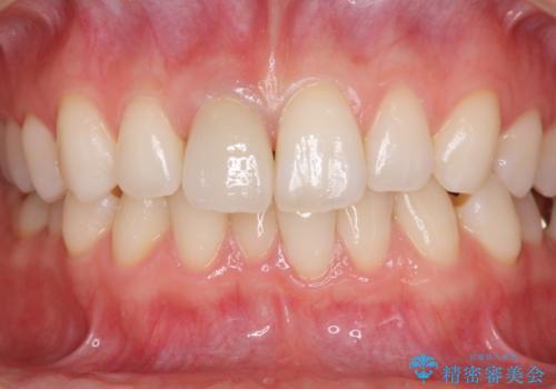 変色した保険診療の前歯をオールセラミックできれいにの治療後