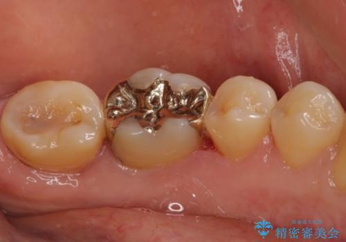 奥歯の虫歯をゴールドインレーで修復治療の治療後