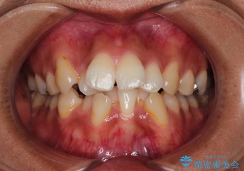 目立たない装置で前歯のデコボコを改善 リンガル装置の抜歯矯正の症例 治療前