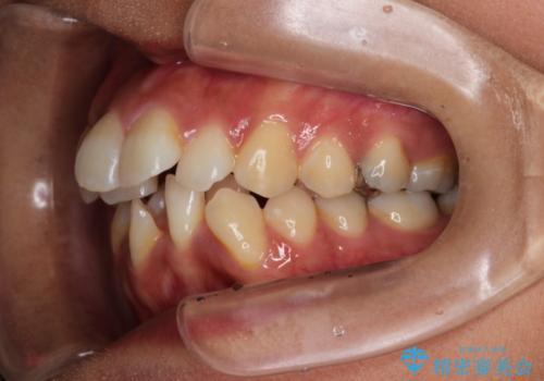 目立たない装置で前歯のデコボコを改善 リンガル装置の抜歯矯正の治療前