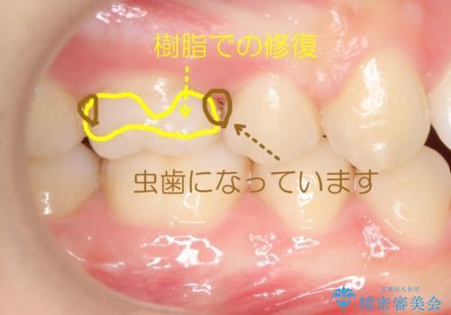 奥歯の歯の間の虫歯の治療 セラミッククラウンおよびセラミックインレーの治療前