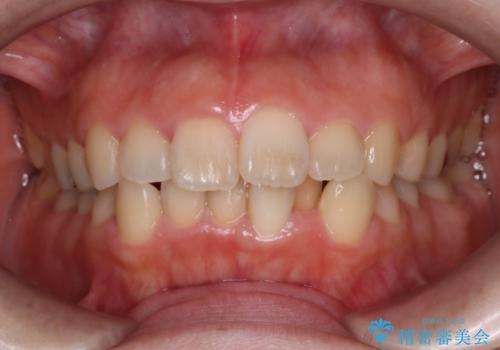 インビザラインinvisalignによる軽度ガタつきの歯列矯正治療の症例 治療前