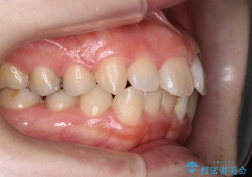インビザラインinvisalignによる軽度ガタつきの歯列矯正治療の治療前