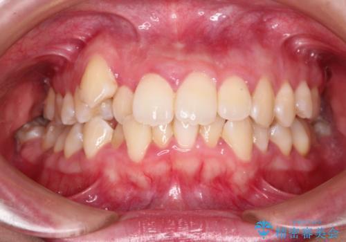 結婚式までに見栄えの良い歯並びにしてほしいの症例 治療前