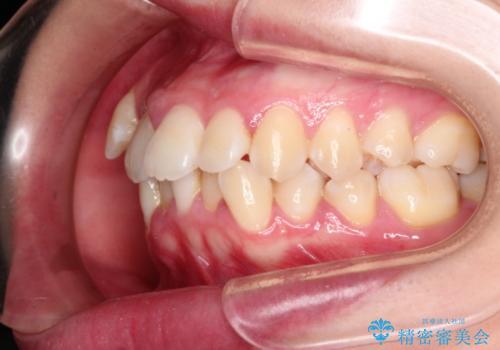 結婚式までに見栄えの良い歯並びにしてほしいの治療前