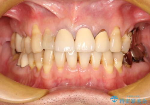 上の前歯を根の治療からの再補綴の症例 治療前