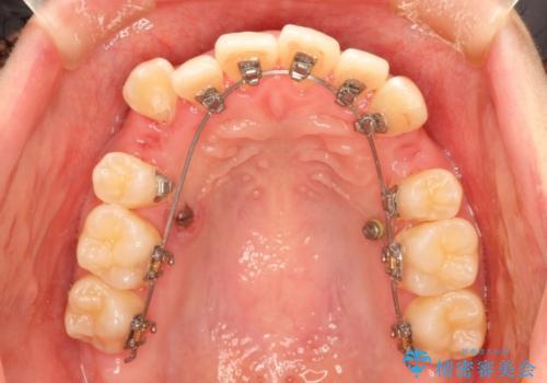 結婚式までに見栄えの良い歯並びにしてほしいの治療中