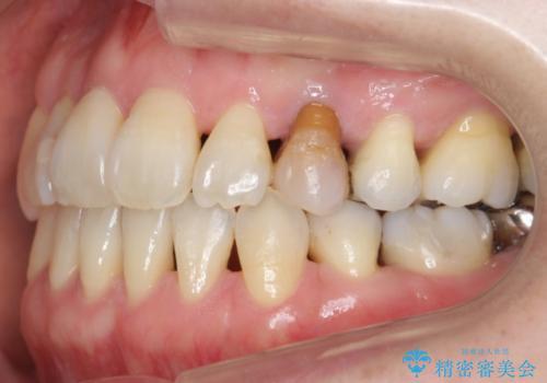 前歯のセラミッククラウン 犬歯に相当する部位に自然にの治療前