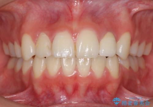 ホワイトニングとセラミックで前歯を白く の症例 治療後