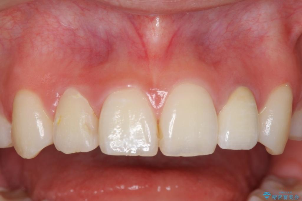 ホワイトニングとセラミックで前歯を白く  (医)精密審美会