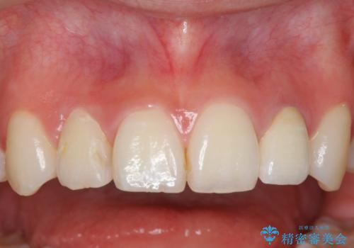 ホワイトニングとセラミックで前歯を白く の治療後