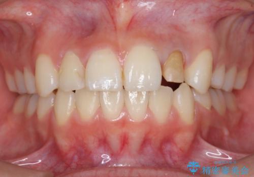 ホワイトニングとセラミックで前歯を白く の治療中