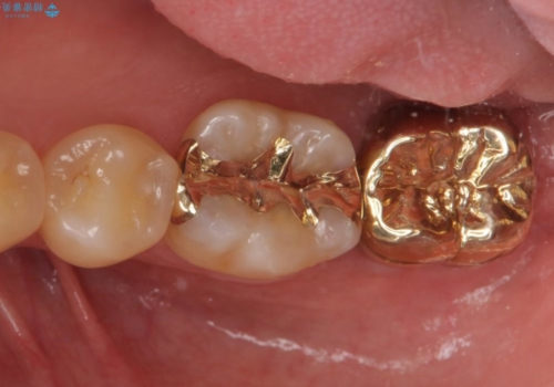 ゴールドクラウン 削る量を最小限にの治療後