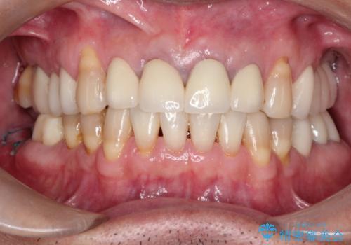 上の前歯を根の治療からの再補綴の症例 治療後