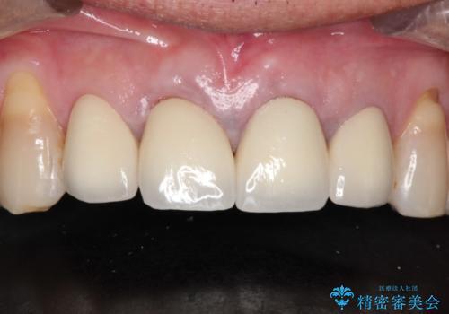 上の前歯を根の治療からの再補綴の治療後
