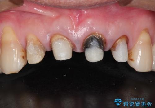 上の前歯を根の治療からの再補綴の治療中