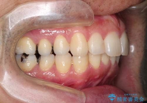 インビザラインで出っ歯の治療の症例 治療後