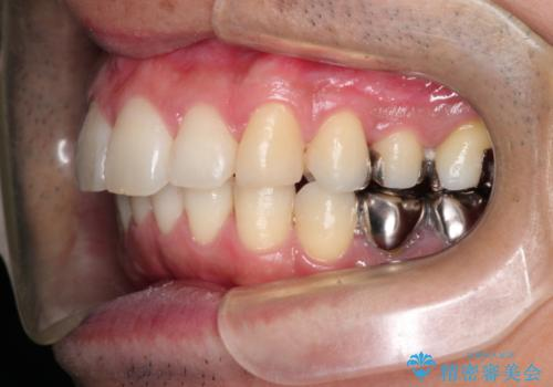 インビザラインで出っ歯の治療の治療後