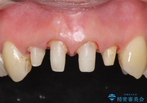 オールセラミッククラウン(スペシャル) 前歯の見た目の改善の治療中