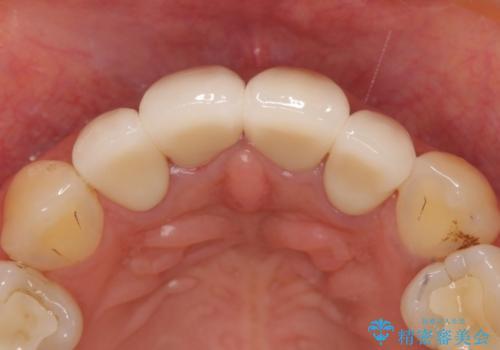 オールセラミッククラウン(スペシャル) 前歯の見た目の改善の治療後