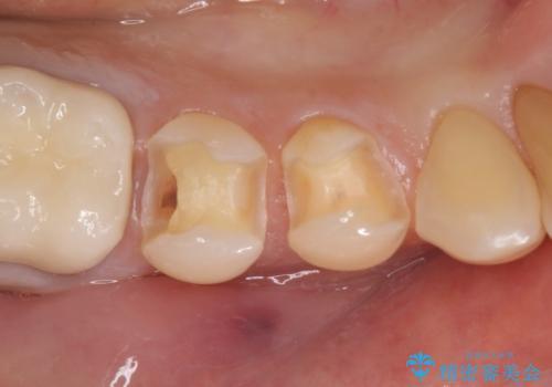 セラミックインレー 虫歯治療の治療中