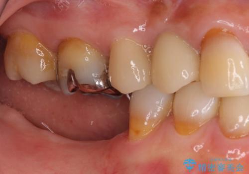 奥歯で咬めない インプラントによる咬合回復① 骨造成 の治療前