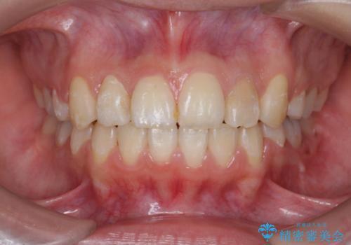 ホワイトニングとセラミックで前歯を白く の症例 治療前