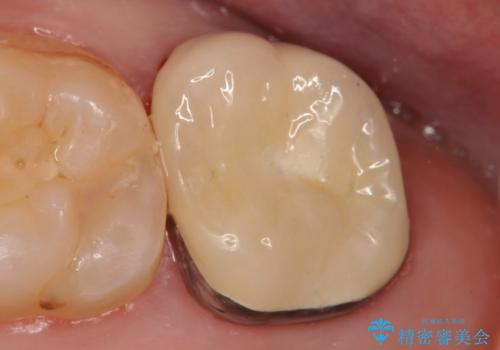 メタルボンドクラウン 虫歯治療の治療後