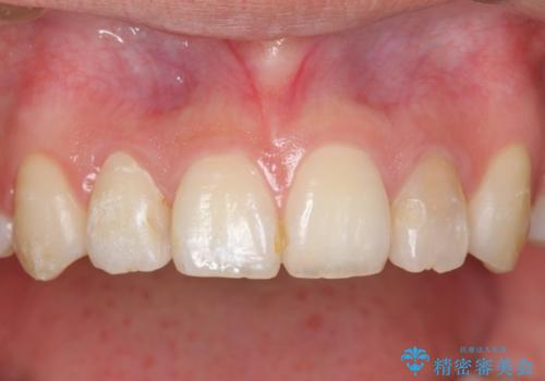 ホワイトニングとセラミックで前歯を白く の治療前