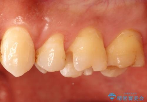 銀歯のやり直し 虫歯治療 セラミックインレーに変更の治療中