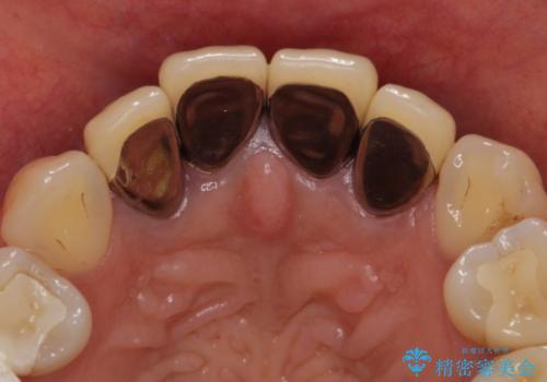オールセラミッククラウン(スペシャル) 前歯の見た目の改善の治療前