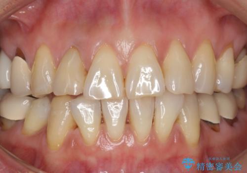 加齢で黄ばんだ歯を白く。(スペシャルホワイトニング)の症例 治療前