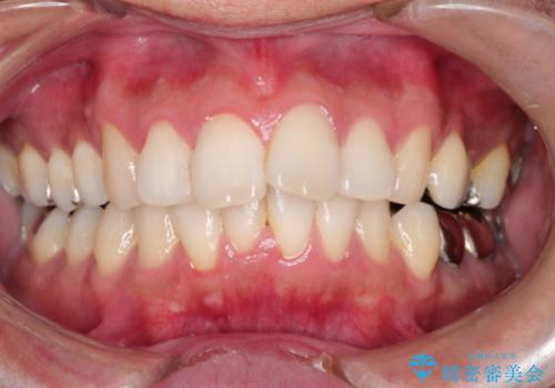 インビザラインで出っ歯の治療の治療前