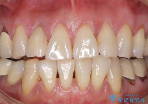 加齢で黄ばんだ歯を白く。(スペシャルホワイトニング)の症例 治療後