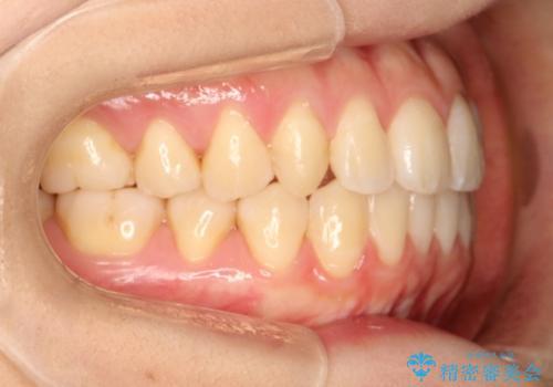 前歯の部分矯正 インビザラインエクスプレスパッケージの治療後