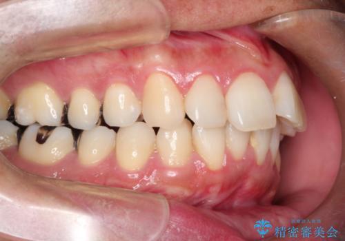 インビザラインで出っ歯の治療の症例 治療前