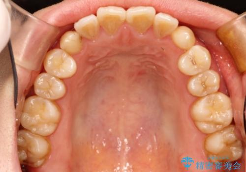 前歯の部分矯正 インビザラインエクスプレスパッケージの治療前