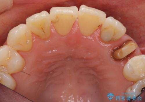 前歯のセラミッククラウン 犬歯に相当する部位に自然にの治療中