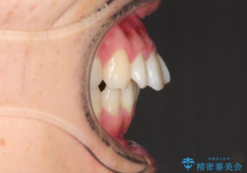 [30代男性] インビザラインで出っ歯の治療の治療前