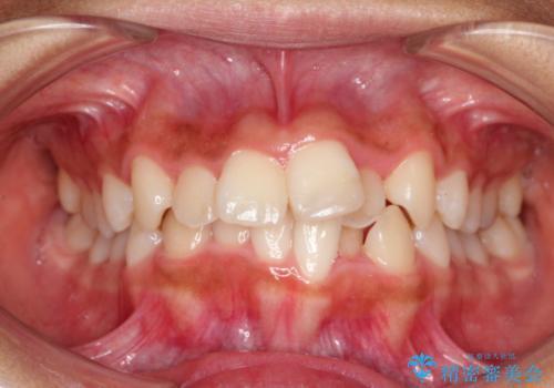ガタガタの歯並びをインビザラインで美しくの症例 治療前