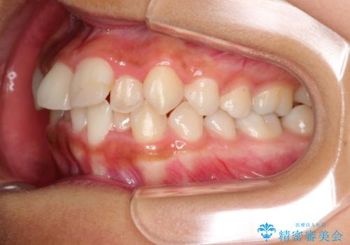 ガタガタの歯並びをインビザラインで美しくの治療前