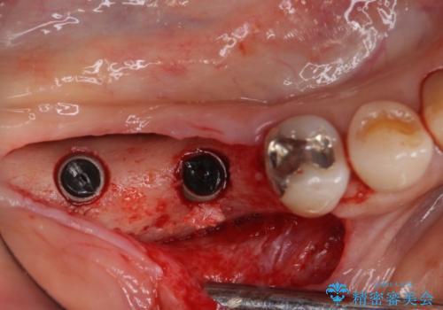 奥歯で咬めない インプラントによる咬合回復① 骨造成 の治療後