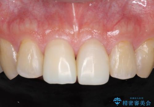 前歯をきれいにしたい なるべく費用おさえての治療中