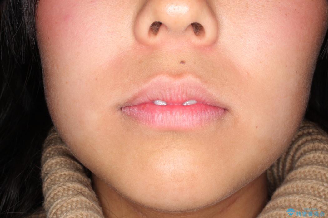 ガタガタの歯並びをインビザラインで美しくの治療前(顔貌)