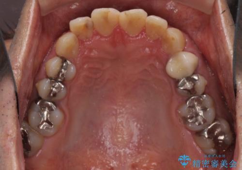 前歯をきれいにしたい なるべく費用おさえての治療前