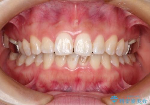 矯正中にPMTCとホワイトニングで歯を白くの治療前